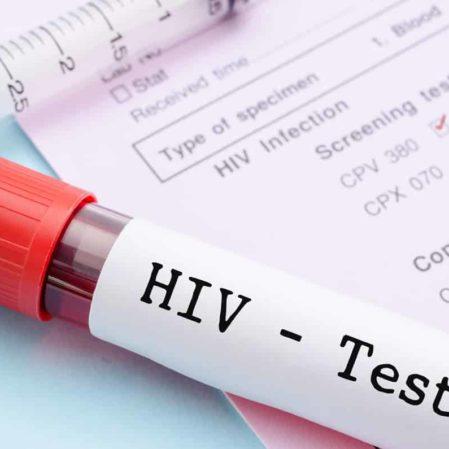cannabisöl bei hiv aids
